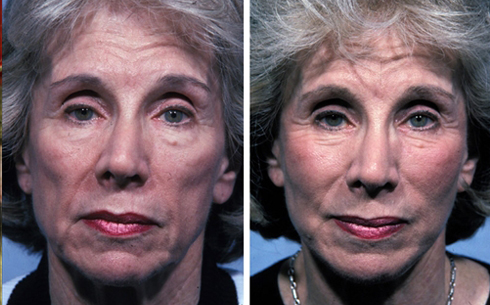 Facelift and Midface Implants Before and After Patient 9