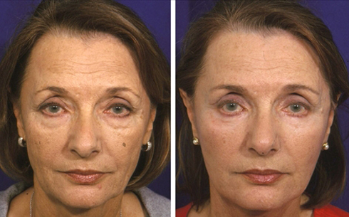 Face and Neck Lift Before and After Patient 2