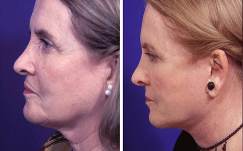 Face and Neck Lift Before and After Patient 10