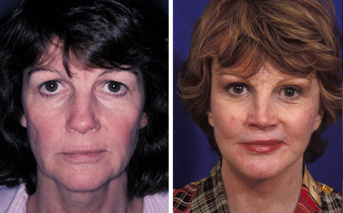 Face and Neck Lift Before and After Patient 11