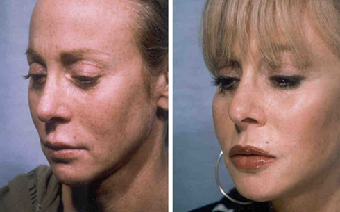 Face and Neck Lift Before and After Patient 13