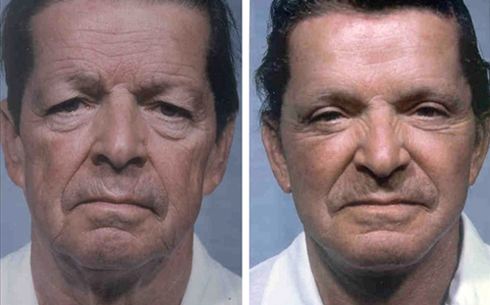 Face and Neck Lift Before and After Patient 14