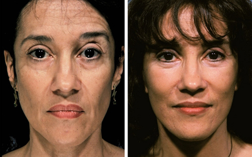 Face and Neck Lift Before and After Patient 15