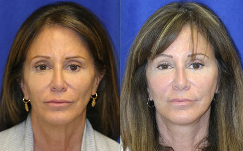 Face and Neck Lift Before and After Patient 1