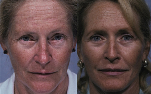 Face and Neck Lift Before and After Patient 3