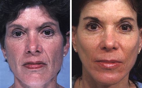 Face and Neck Lift Before and After Patient 4
