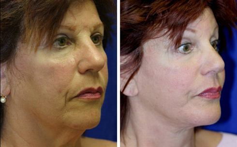 Face and Neck Lift Before and After Patient 5