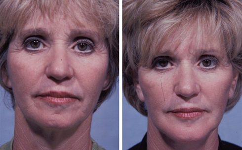 Face and Neck Lift Before and After Patient 6