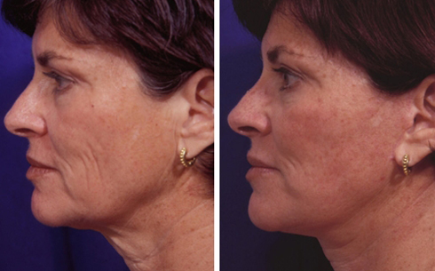 Face and Neck Lift Before and After Patient 7