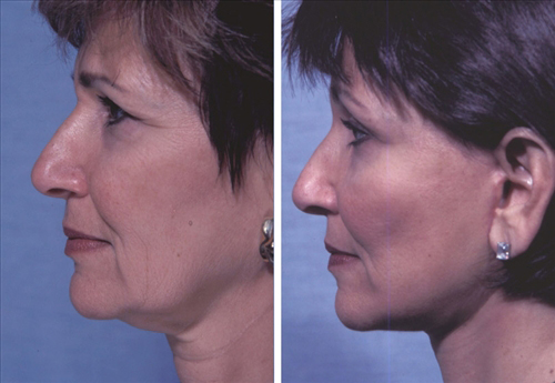 Face and Neck Lift Before and After Patient 8