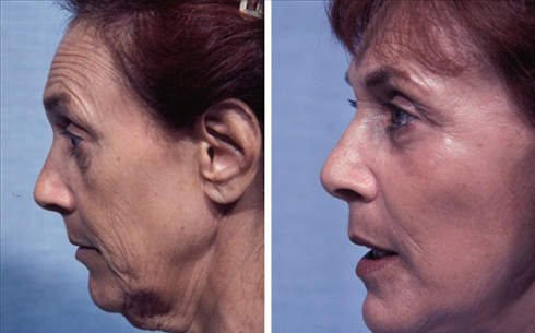 Face and Neck Lift Before and After Patient 9