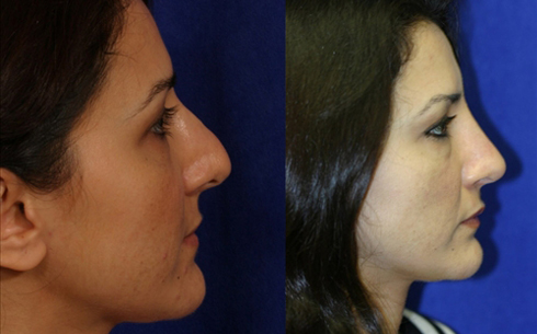 Revision Rhinoplasty Before and After Patient 10