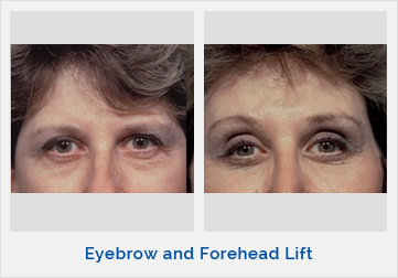 Eyebrow and Forehead Lift