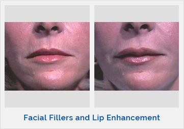 Facial Fillers and Lip Enhancement