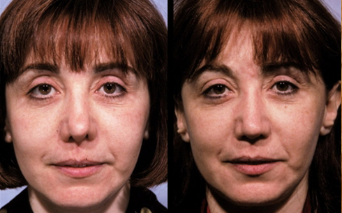 Revision Rhinoplasty Before and After Patient 4