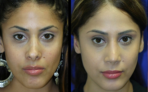 Revision Rhinoplasty Before and After Patient 6
