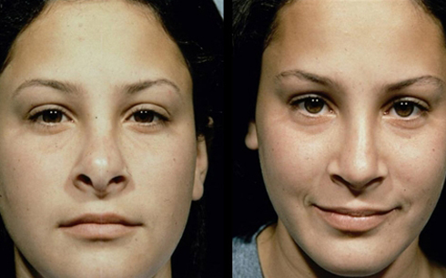 Revision Rhinoplasty Before and After Patient 7
