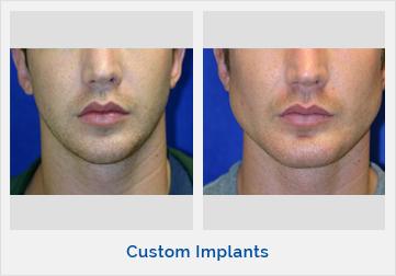 Custom Implants