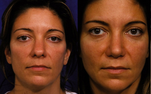 Revision Rhinoplasty Before and After Patient 8