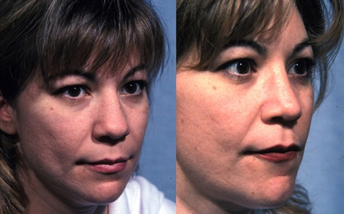 Revision Rhinoplasty Before and After Patient 9