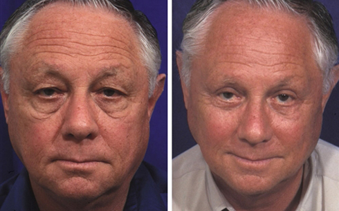 Midface Lift Before and After Patient 1