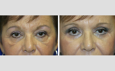 Midface Lift Before and After Patient 4
