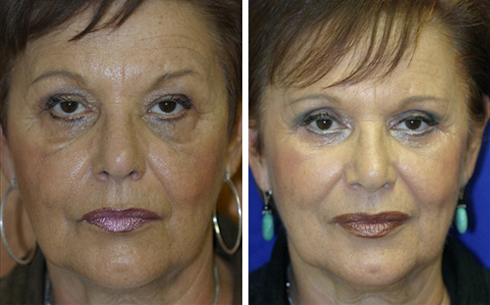 Midface Lift Before and After Patient 5