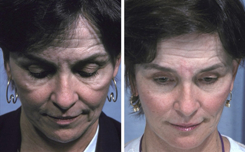 Midface Lift Before and After Patient 6