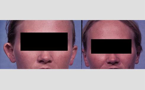 Otoplasty Before and After Patient 2