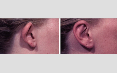 Otoplasty Before and After Patient 3