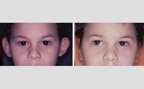 Otoplasty Before and After Patient 5