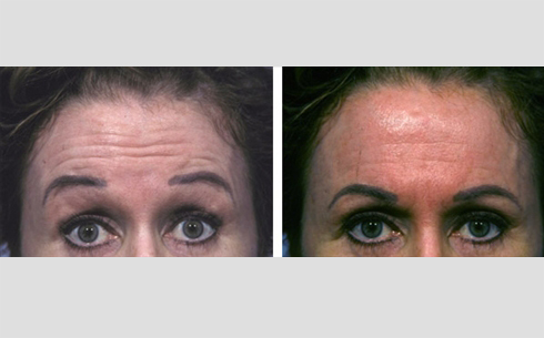 Botox Before and After Patient 10