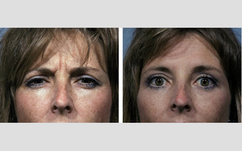 Botox Before and After Patient 1