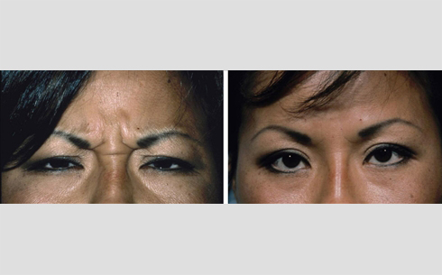 Botox Before and After Patient 2