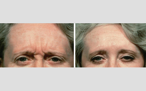 Botox Before and After Patient 5
