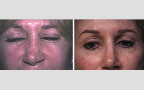 Botox Before and After Patient 6