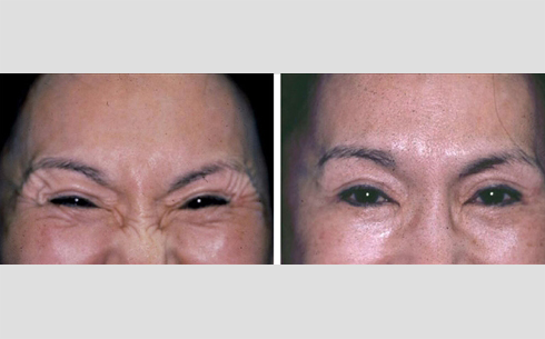 Botox Before and After Patient 7