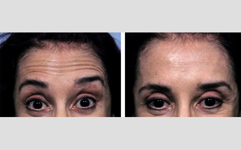 Botox Before and After Patient 9