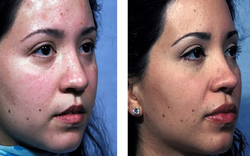 Rhinoplasty Before and After Patient 8