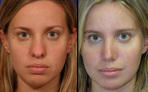 Rhinoplasty Before and After Patient 22