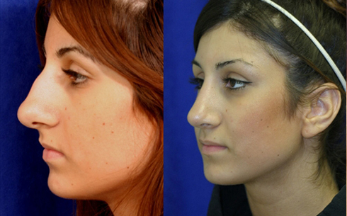 Rhinoplasty Before and After Patient 2