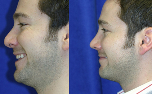 Rhinoplasty Before and After Patient 28
