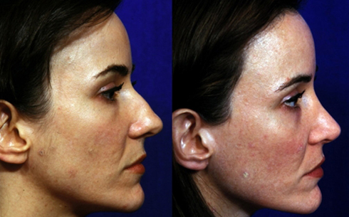 Rhinoplasty Before and After Patient 18