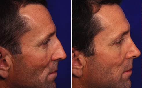 Rhinoplasty Before and After Patient 19