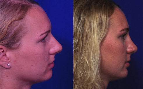 Rhinoplasty Before and After Patient 20
