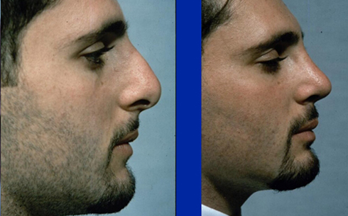 Rhinoplasty Before and After Patient 10