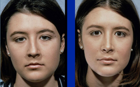 Rhinoplasty Before and After Patient 9