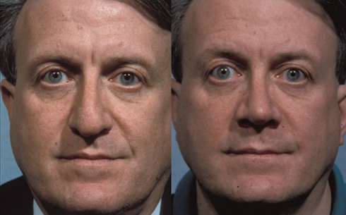 Rhinoplasty Before and After Patient 17