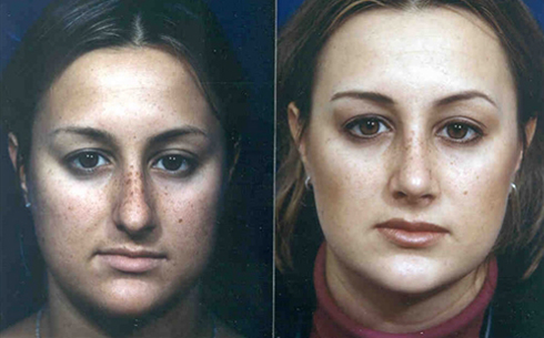 Rhinoplasty Before and After Patient 15
