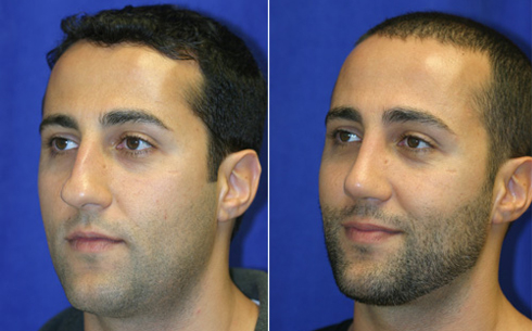 Rhinoplasty Before and After Patient 5
